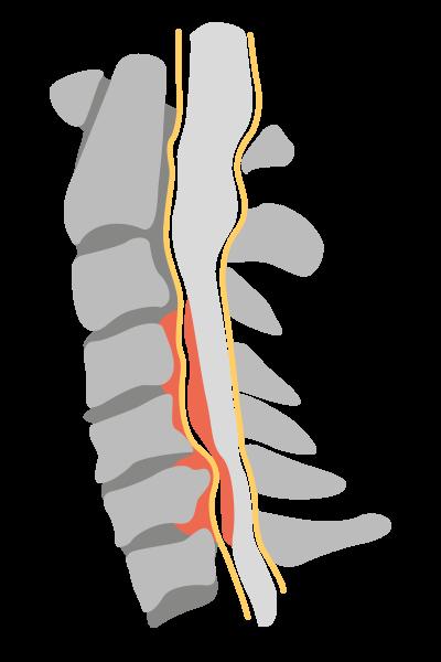 cervical myelopathy image